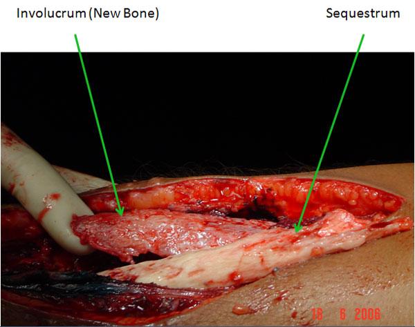 infected femur